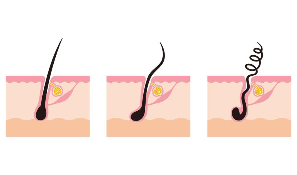 くせ毛の根本原因(2) | 毛根の形状の違い