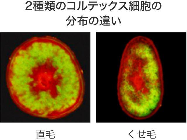 くせ毛の根本原因(1) | 2種類のコルテックス細胞の分布の違い